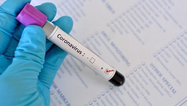 Slider-Gürcüstanın 28 sülhməramlısı koronavirusa yoluxdu